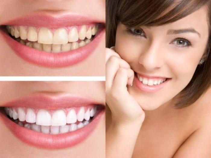 Dental Care Remedies