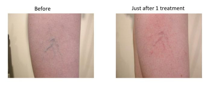 Laser Treatments For Superficial Vascular Lesions