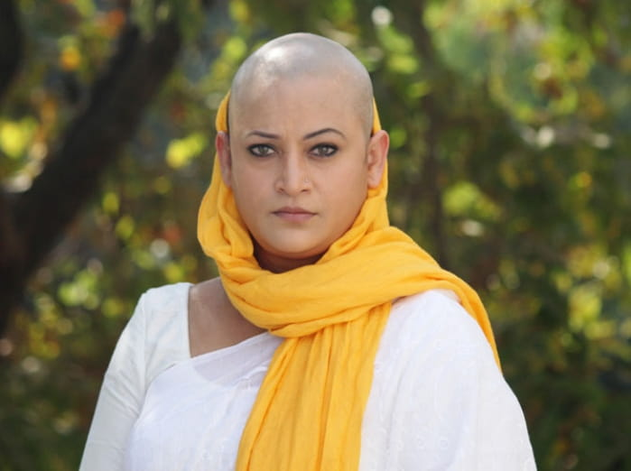 rinku karmarkar bald look